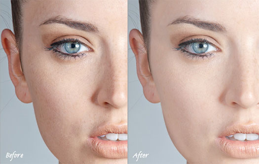 Simple Skin Retouching Techniques - Photoshop Tutorial